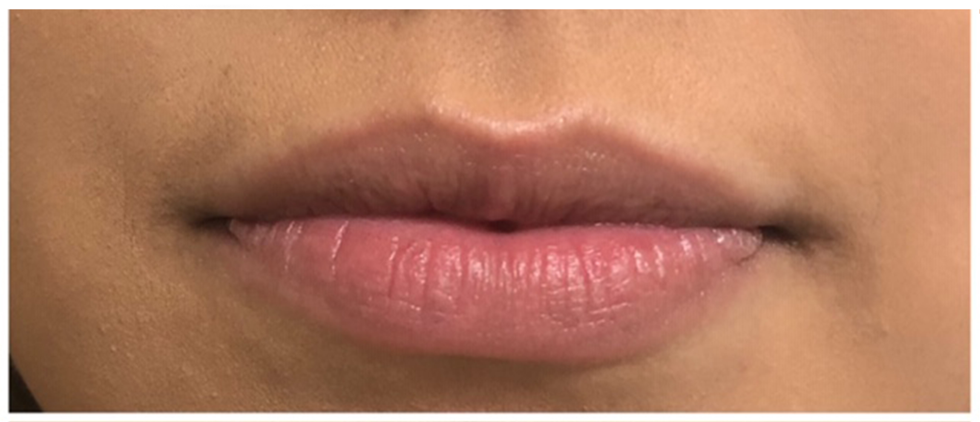 Juvederm Ultra Before And After Lantry Aesthetics