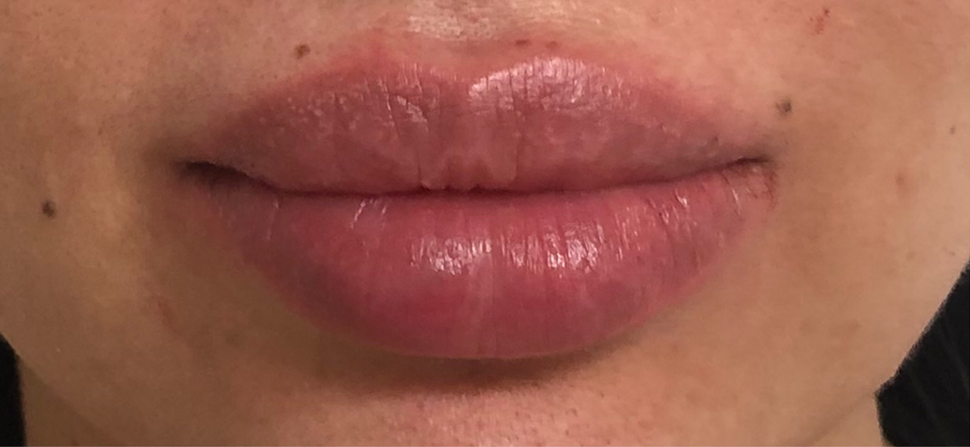 Lips Before And After | Lantry Aesthetics & Skincare Center